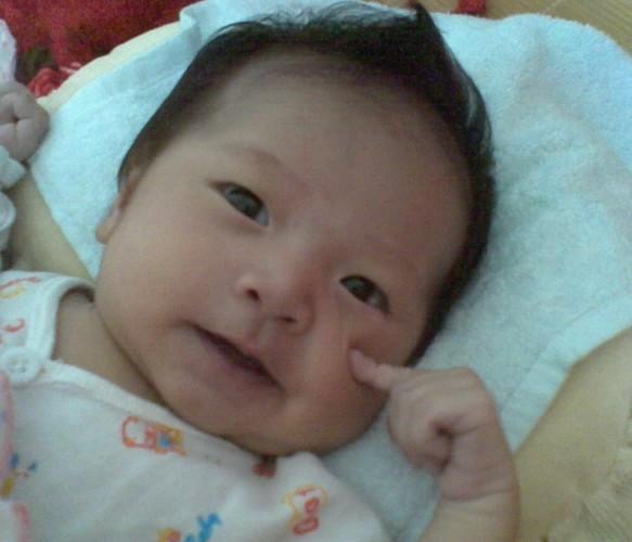 孩子手术前可爱的笑脸